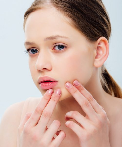 upset teenage girl with acne touching face isolated on grey